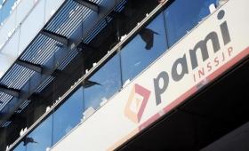PAMI salda una deuda de 2 millones de pesos con ópticas