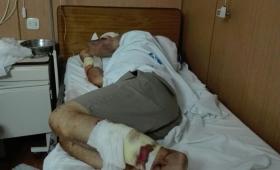Deben amputarle una pierna al abuelo atacado por perros