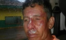 Garupá: jugadores golpearon ferozmente a dos árbitros