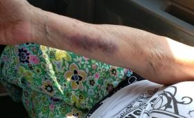 Golpeó y arrastró por el patio a su madre de 80 años