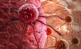 Un hombre de cada 5 desarrollará cáncer a lo largo de su vida