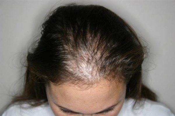 Relación entre  nerviosismo, estrés y caída del cabello