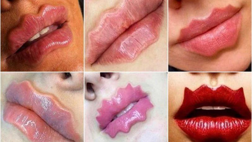 """Moda viral: """"labios del diablo"""" o """"labios de pulpo"""""""