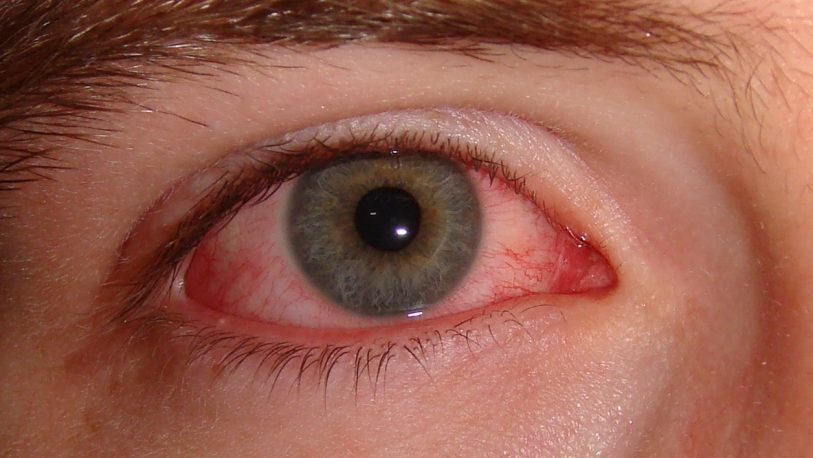 Ojos rojos, la principal consulta en verano