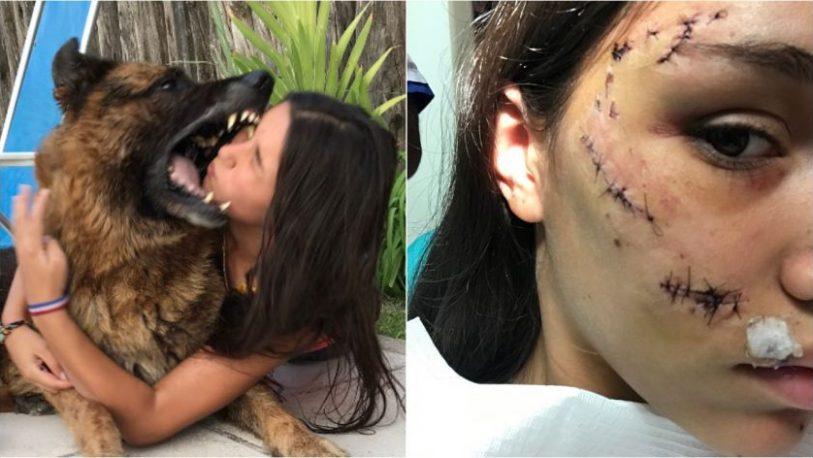 Joven jugaba con su perro y el animal le destrozó la cara