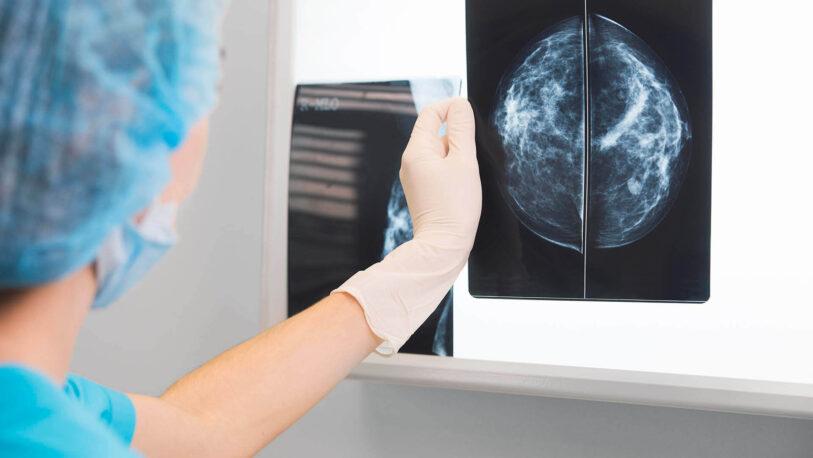 Ofrecerán mamografías gratuitas en Misiones