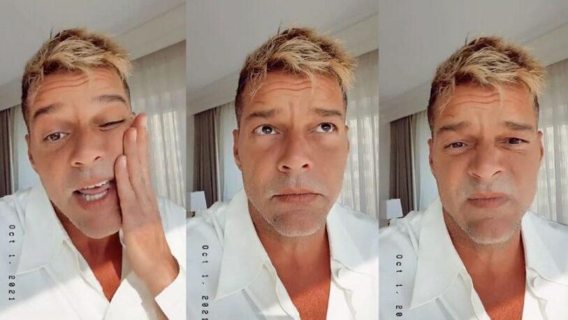 Ricky Martin rompió el silencio sobre su supuesto retoque en la cara